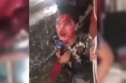 الكاظمي يوجه باعتقال والد الطفل المقيد بالحديد دام الوجه